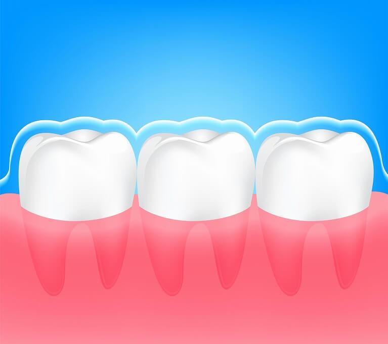 歯のクリーニング~プロフェッショナルケア~