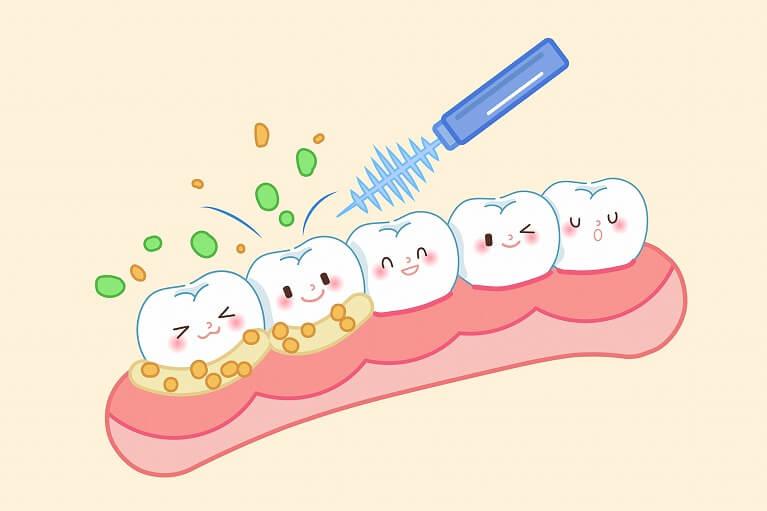 歯のクリーニングが必要な理由