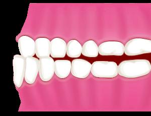 反対咬合・下顎前突