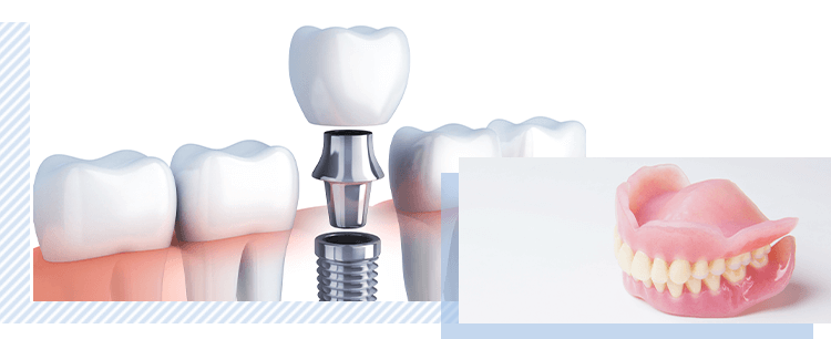 インプラントや入れ歯で 欠損歯の治療
